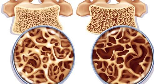 Остеопороз-в-разрезе-костной-ткани